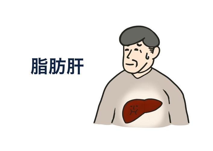 脂肪 肝 と は